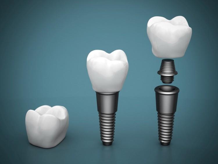 implanty zębów za i przeciw implanty warszawa