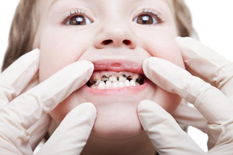 lapisowanie-zebow-warszawa-leczenie-prochnicy-dobry-stomatolog-dzieciecy