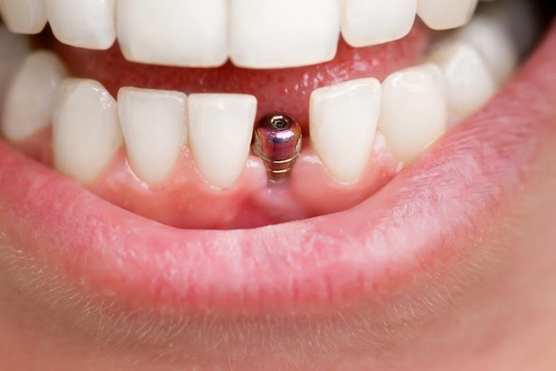 implanty-zebowe-mity-implantologia-warszawa