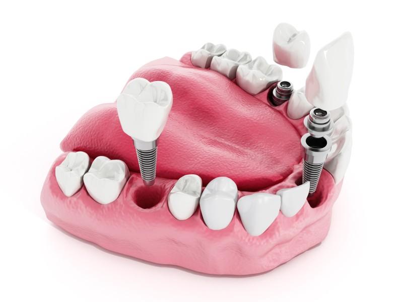 implanty-czy-protezy-implantologia-stomatologiczna-warszawa