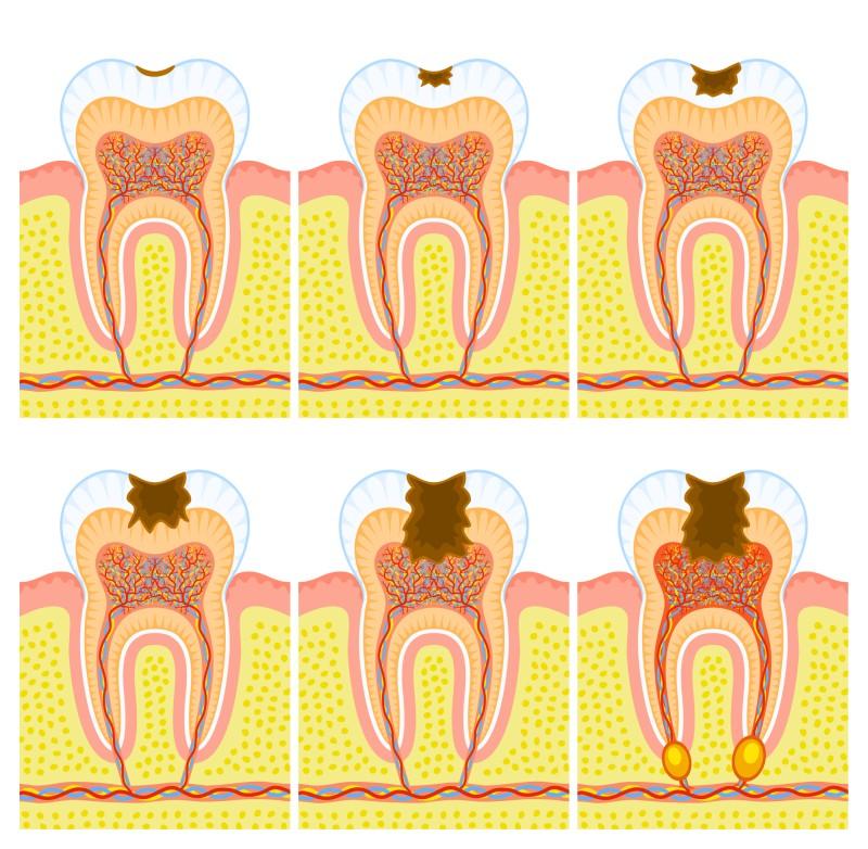 leczenie próchnicy warszawa wola polecany dentysta dobry stomatolog